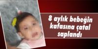 8 aylık bebeğin kafasına çatal saplandı